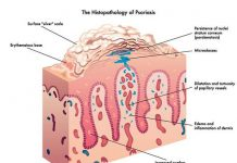 Histopathology of Psoriasis