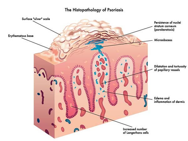 Psoriasis histopathology